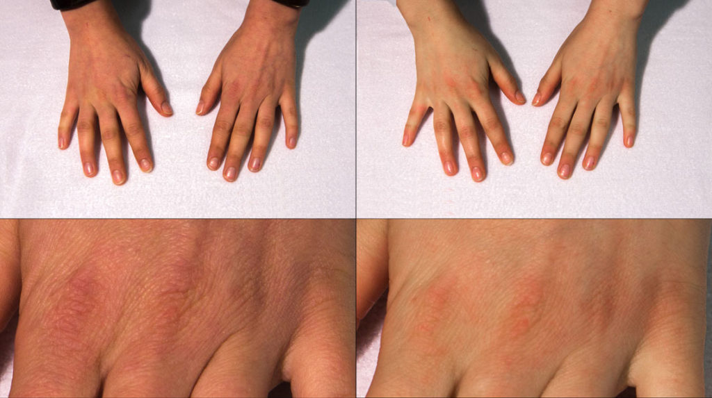 Before and After - BeautyHands with Phytensor